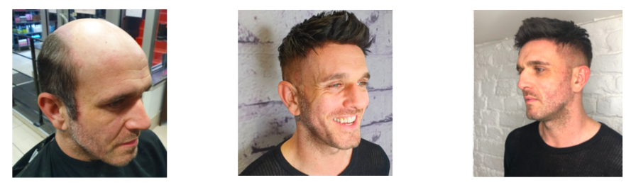 Mens Hair Replacement Liverpool